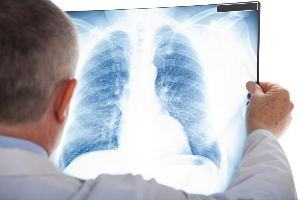 Doctor looking at x-ray of lungs. Mesothelioma Lawyer Baltimore Maryland